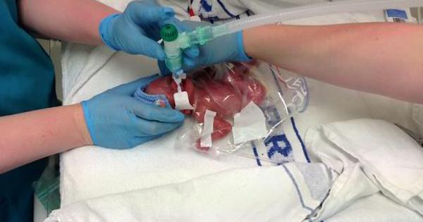 lab baby born