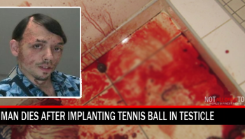 tennis ball implant