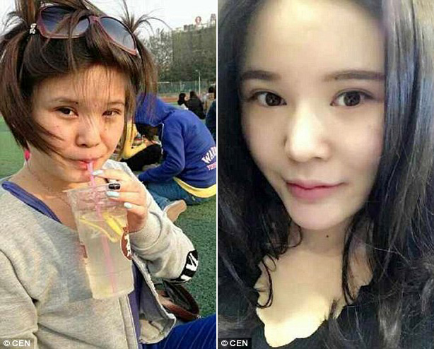 xiaoxiao before surgery