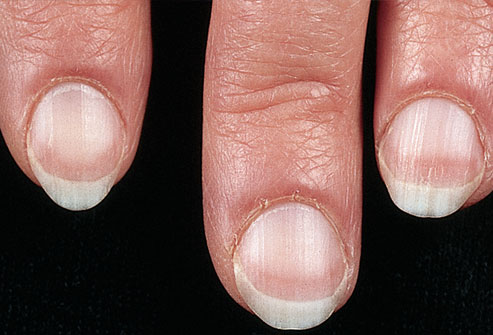 nails and disease