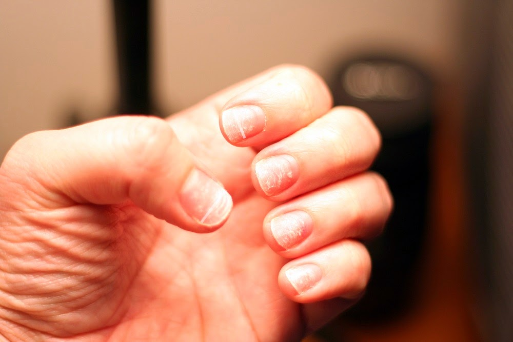 white on nails